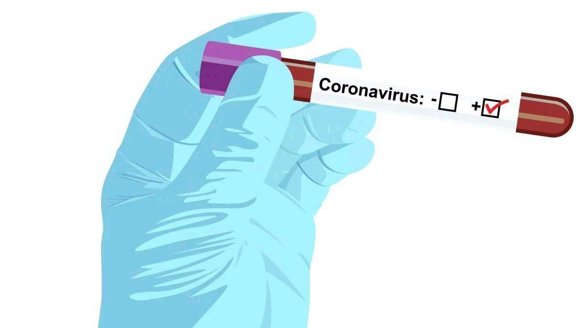 Які області України першими отримають тест-системи для виявлення коронавірусу та чому