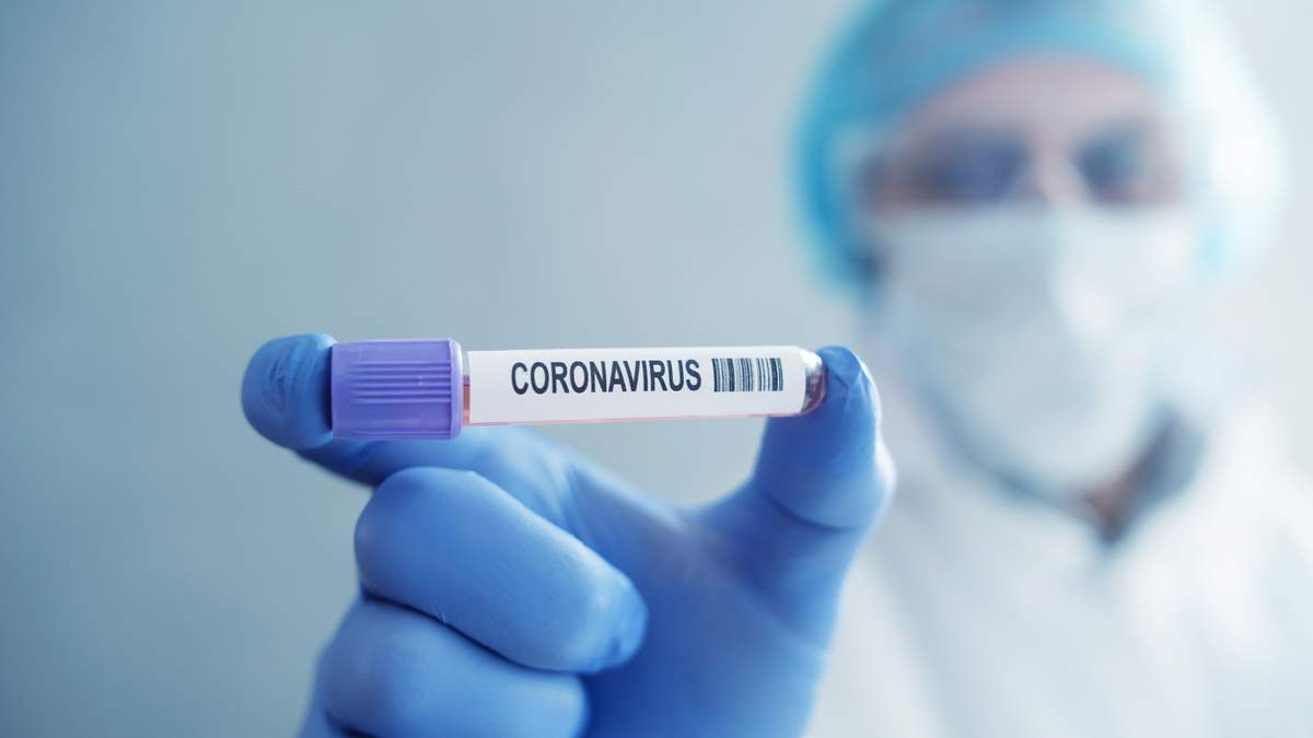 У еще двух водителей во Львове диагностировали коронавирус экспресс-тестами