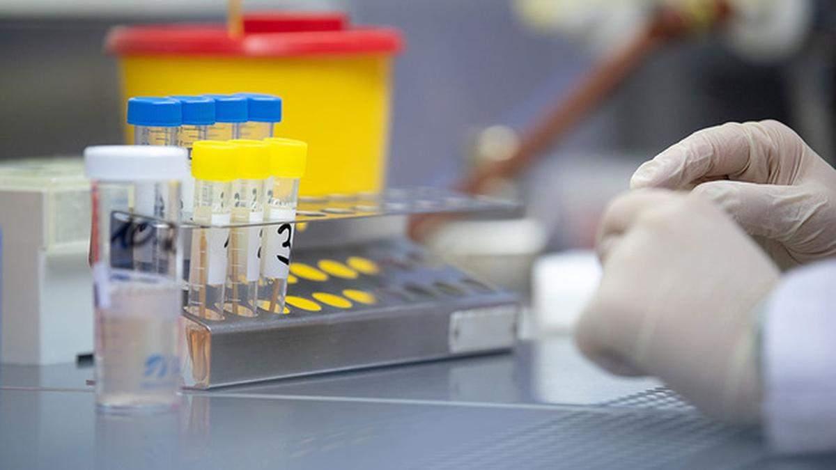 На Львівщині виявили понад 12 тисяч хворих на коронавірус