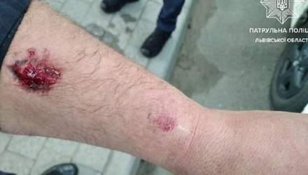 У Львові п'яний водій покусав поліцейського: суд звільнив чоловіка від покарання